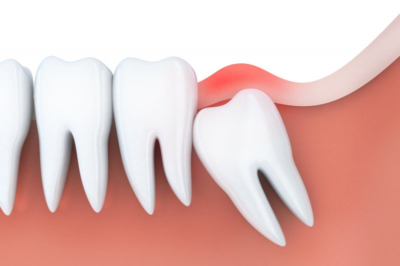 a digital image of an impacted wisdom tooth angled and pressing against healthy, erupted teeth